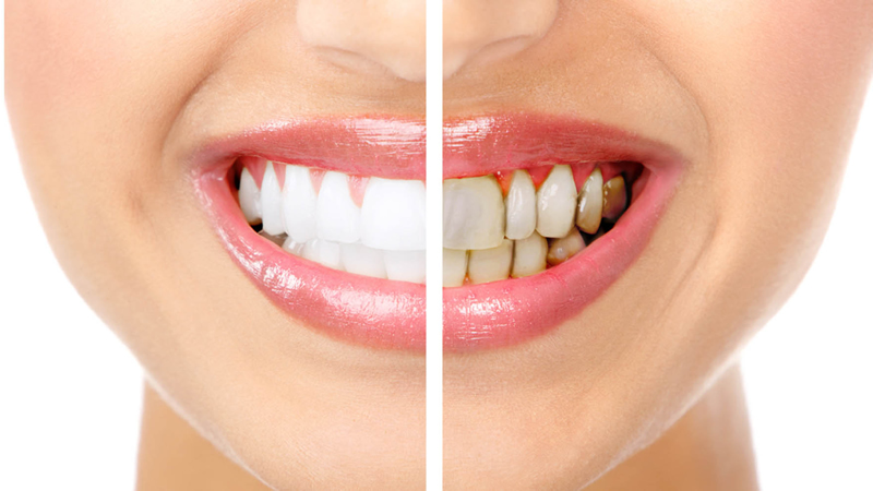 Comparativa de dientes con la estética dental