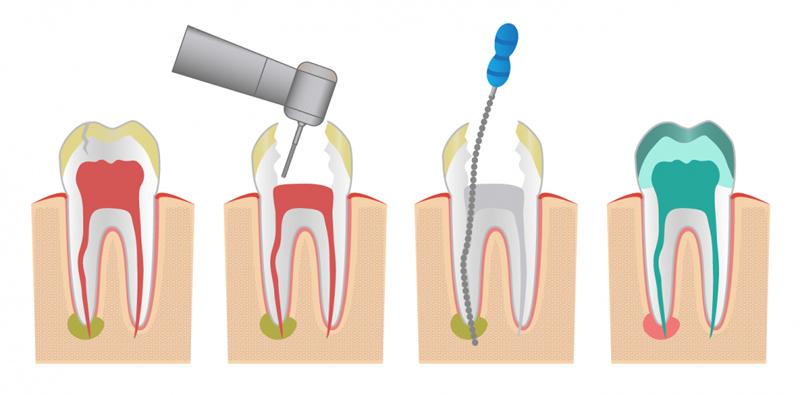 Proceso de la endodoncia en Beniaján