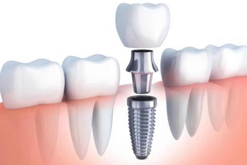 Implantes dentales Beniaján