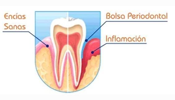 Diferencia encía sana e inflamación periodontal
