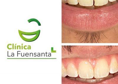 clinica_dental_la_fuensanta_beniajan_casos_clinicos (6)