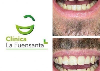 clinica_dental_la_fuensanta_beniajan_casos_clinicos (7)