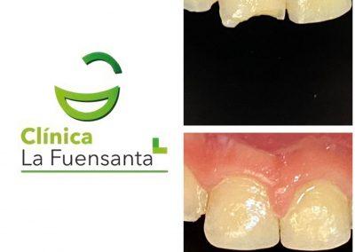 clinica_dental_la_fuensanta_beniajan_casos_clinicos (8)