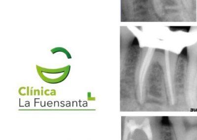 clinica dental la fuensanta beniajan Endodoncia