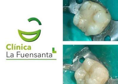 clinica dental la fuensanta beniajan Odontología General