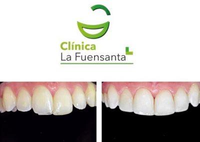 Reconstrucciones estéticas respetando la anatomía dental