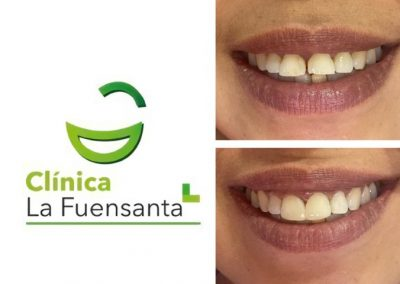 Clínica dental Los dolores 30011