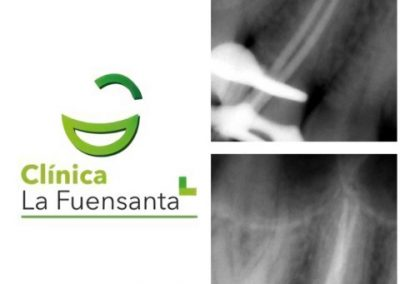 Clínica dental Los Garres - Endodoncia