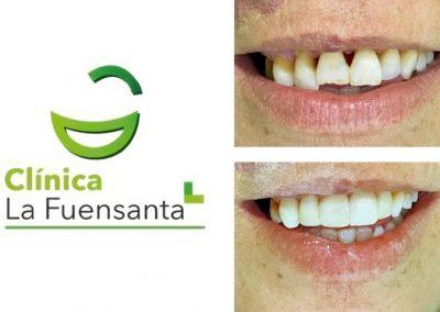 Clínica dental Los Garres - Estética Dental