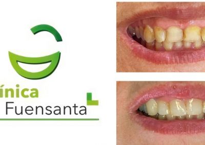 Clínica dental Los dolores 30011