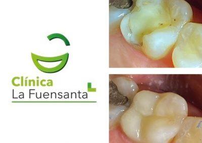 Clínica dental Los Garres