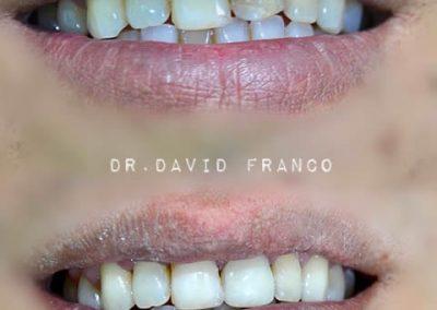 clinica dental la fuensanta beniajan estética dental